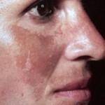 melasma o manchas en la cara