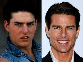 Tom Cruise no podía llegar a ser un galán consagrado de Hollywood con dientes separados y chuecos