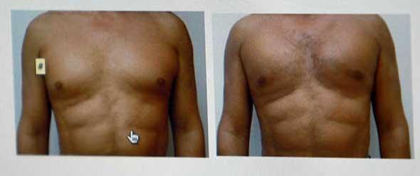 Imágenes tomadas antes y después de practicarse una cirugía de pectorales