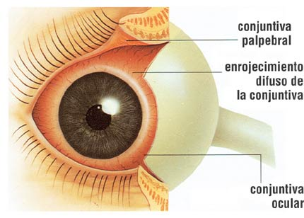 Photo of La Conjuntivitis (causas, signos, sintomas, tratamiento)