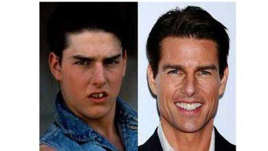 Photo of El antes y después de algunos famosos que se arreglaron los dientes fotos