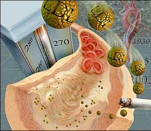 colesterol Diabetes