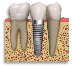implantedental