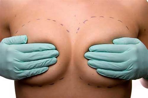 Los implantes de silicón no duran toda la vida 1