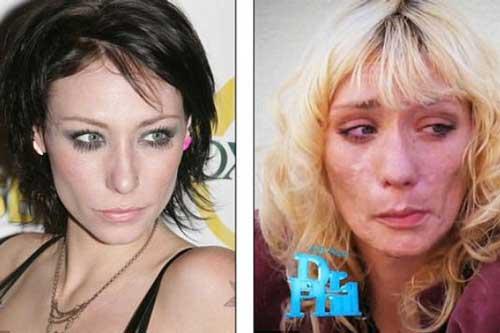 De famosa modelo a desfigurada por las drogas  4
