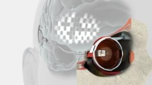 El ojo biónico, un sueño cada vez más real para las personas ciegas
