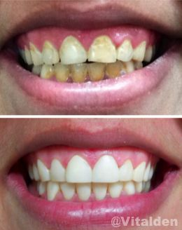 ortodoncia-instantanea-4 @vitalden