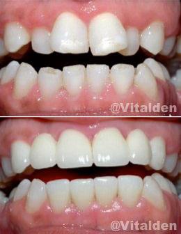 que es la ortodoncia - instantanea