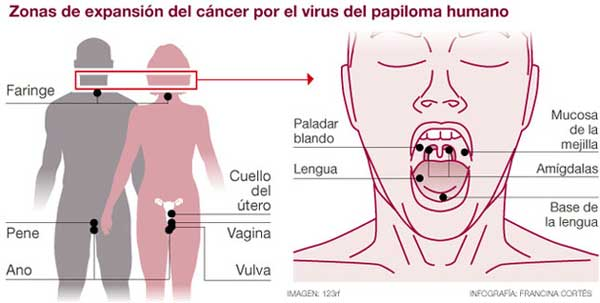 cancer bucal