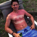 #SunburnArt  Práctica que se vuelve tendencia en EE UU 6