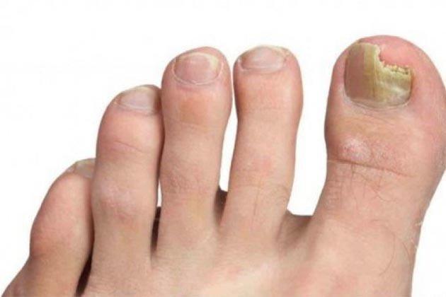 eliminar hongos de uñas