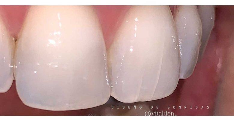 Photo of Has notado grietas en tus dientes ?