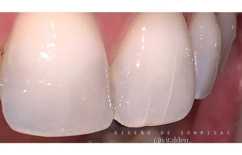 Has notado grietas en tus dientes ? 2