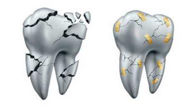 Carillas de Cerámica se pueden reparar en boca en vez de Reemplazarlas. 2