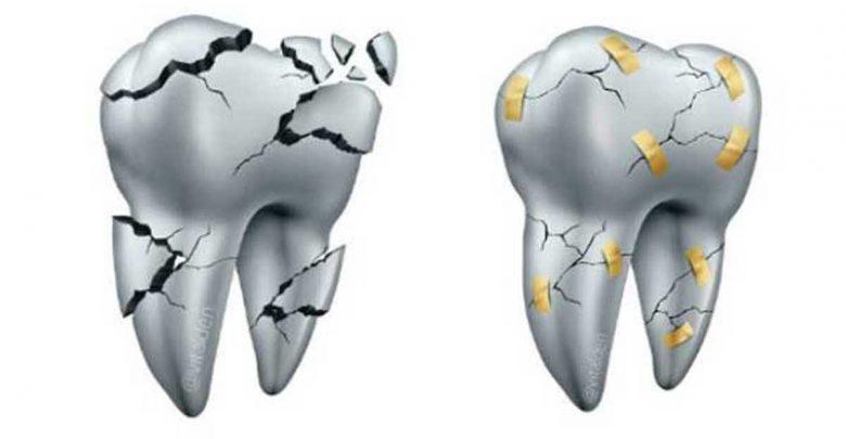 Photo of Carillas de Cerámica se pueden reparar en boca en vez de Reemplazarlas.