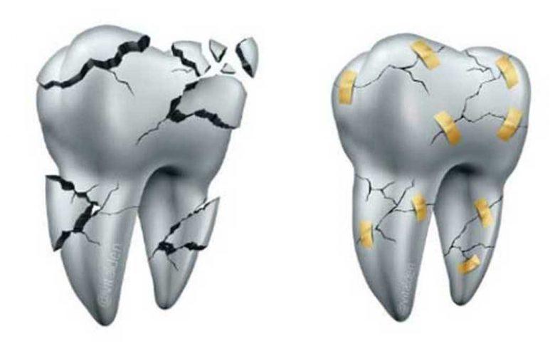 Carillas de Cerámica se pueden reparar en boca en vez de Reemplazarlas. 1