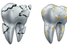 repara carillas dentales