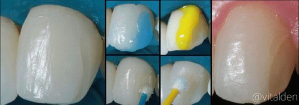 reparar carillas dentales