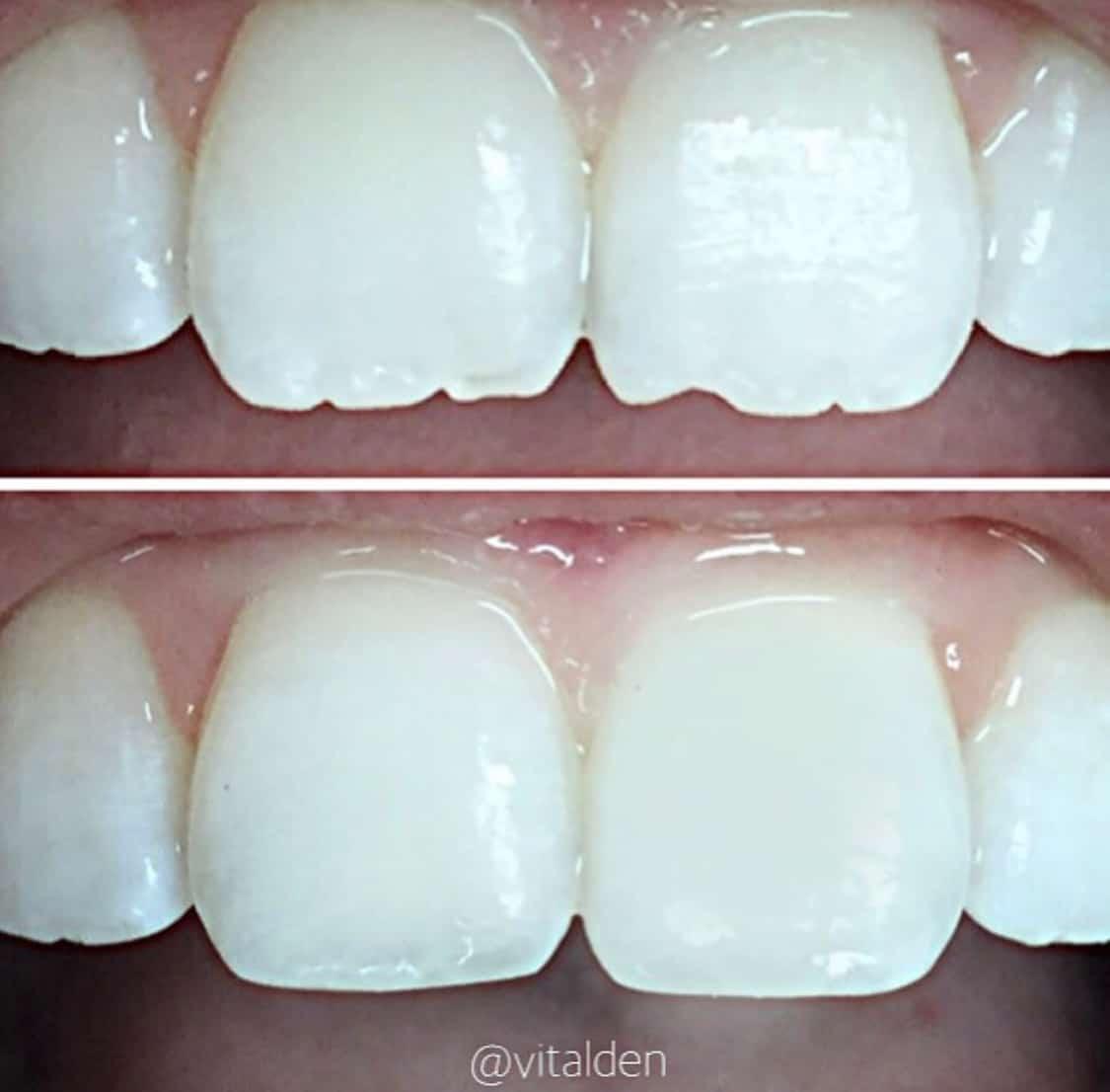 dental mejora la anatomia