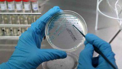 Photo of Hay una bacteria súper resistente a los antibióticos que se está desarrollando en los hospitales de Europa.